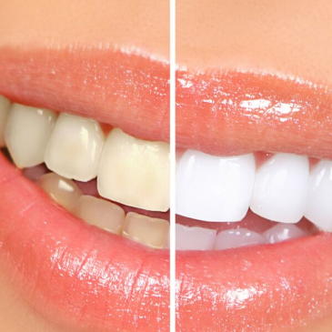 Teeth Whitening Facts You Must Know